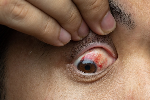 Blood in the eye from a subconjunctival hemorrhage usually disappears within a week or two