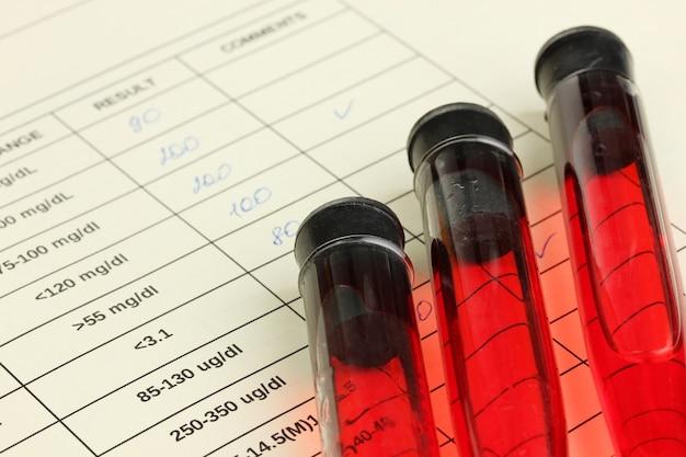 試験管内の血液と結果をクローズアップ