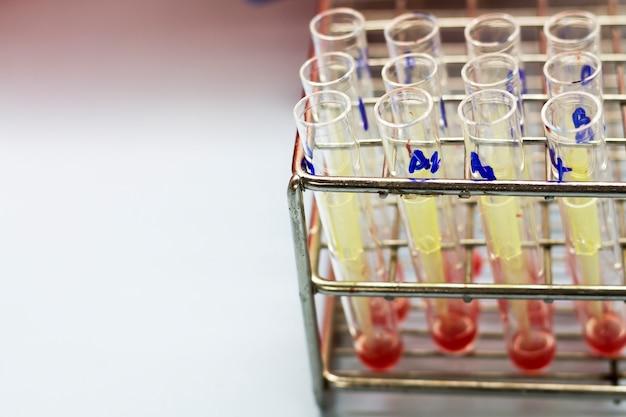 테스트 샘플로 사용하기위한 테스트 튜브의 혈액