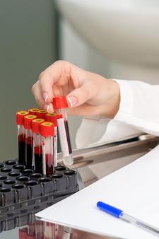 Blood sample tubes in hands