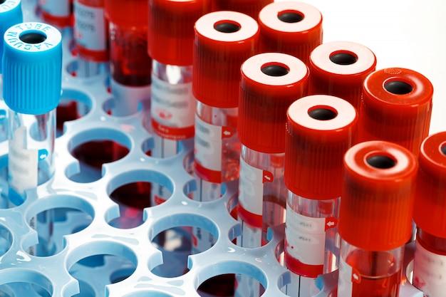 血液サンプルチューブ医療機器をクローズアップ