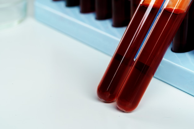 Blood sample tubes  medical equipment close up