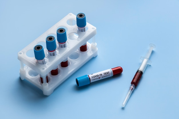 Blood samples for covid test in lab