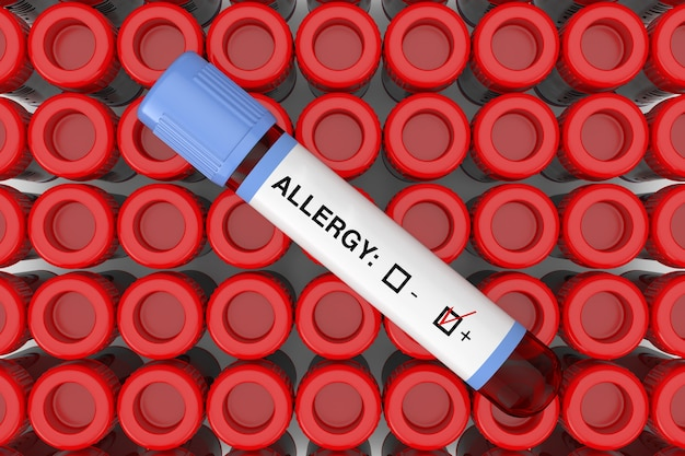 테스트 플라스크 튜브 극단적인 근접 촬영의 행에 알레르기 양성 결과와 혈액 테스트 플라스크 튜브. 3d 렌더링