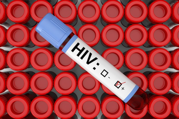 Пробирка склянки для анализа крови с положительным результатом на вич над рядами крупного плана пробирки пробирки крайним. 3d рендеринг