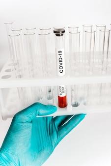 Анализ крови на коронавирусную инфекцию в медицинской пробирке на стойке для медицинских пробирок