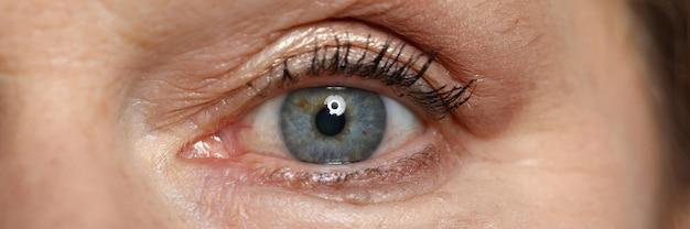 Голубые глаза пожилой женщины смотрят прямо