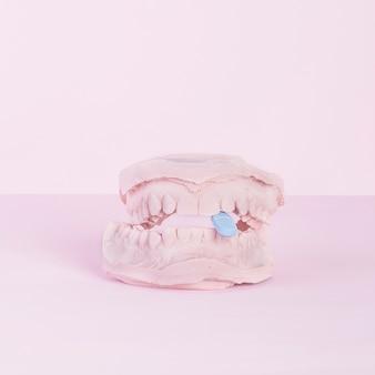 ピンクの背景に歯科鋳造石膏モデルの石膏キャスト内の青いタブレット