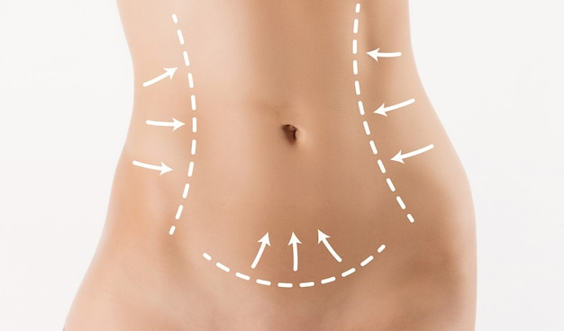 Body correction with the help of plastic surgery on  white background. woman belly marked out for cosmetic surgery or liposuction