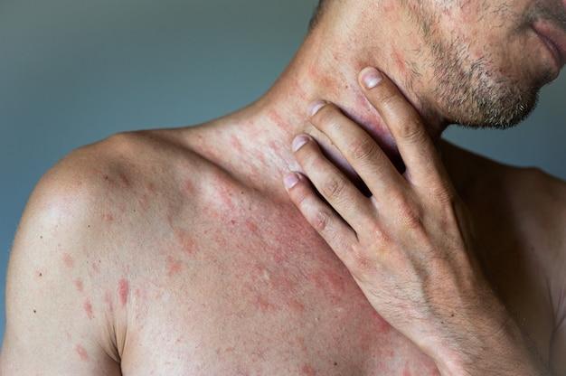 На теле взрослого мужчины имеются пятнистые, красные прыщики и пузырьковые высыпания, вызванные вирусом ветряной оспы или ветряной оспы. мужчина с симптомами зудящей крапивницы.