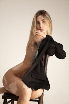 Vitiligo와 아름 다운 젊은 여자의 몸입니다. 자가 면역 질환. 피부 색소 부족. 포괄적 인 아름다움.