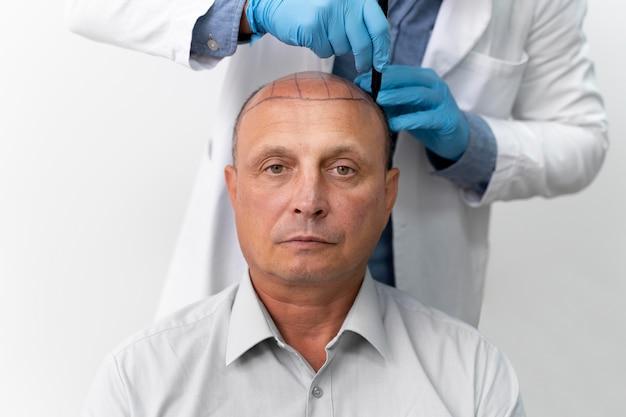 Uomo audace che passa attraverso un processo di estrazione dell'unità follicolare