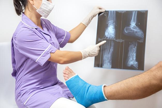 病院の女性医師が診察している男性患者の足と脚の骨折。