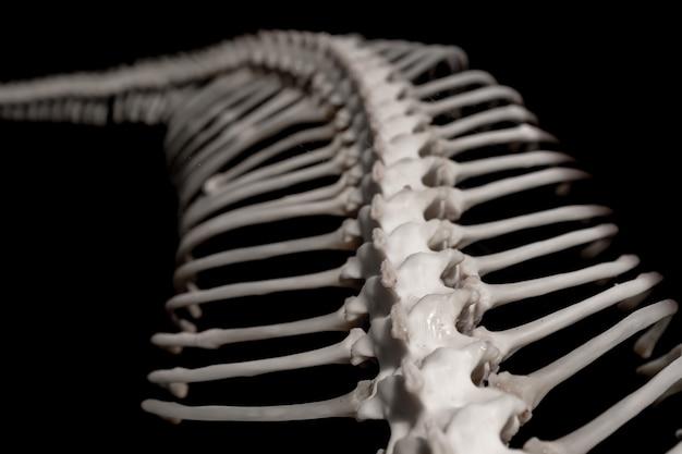 Bone of a snake.