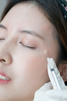 Botox, filler injection for asian female face. plastic aesthetic facial surgery in beauty clinic.
