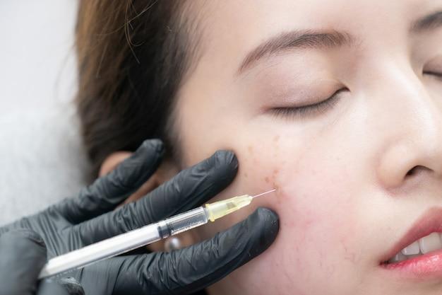ボトックス、アジアの女性の顔のフィラー注入。美容クリニックでの美容整形手術。