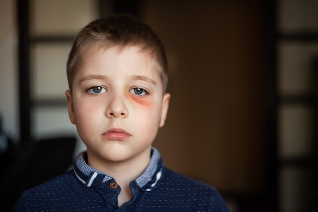 A boy with a black eye