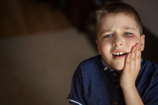 A boy with a black eye