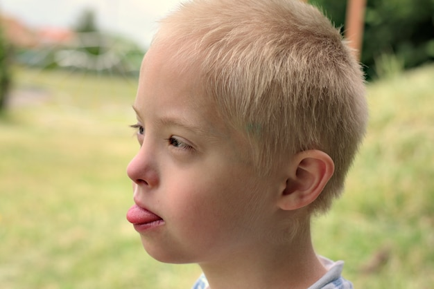 Boy with down syndrome poses for a portrait outdoors.