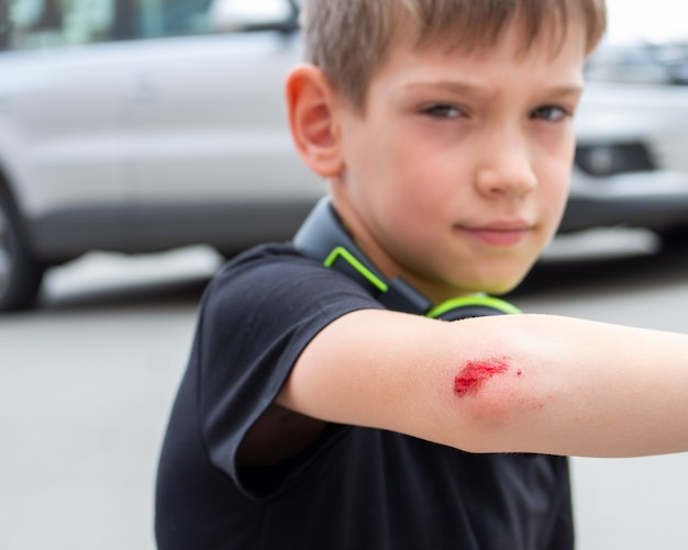 Boy with a fresh wound on his arm, elbow with blood. man injured his hand after falling. medical health concept.
