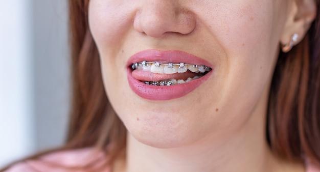 女の子の笑顔の口の中のブレースシステム、歯のマクロ写真、唇のクローズアップ。女の子は舌を突き出しました