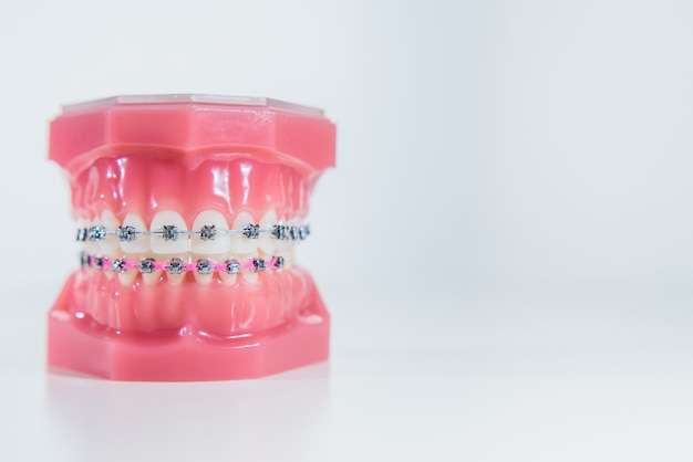 The braces are placed on the teeth in the artificial jaw on a white surface