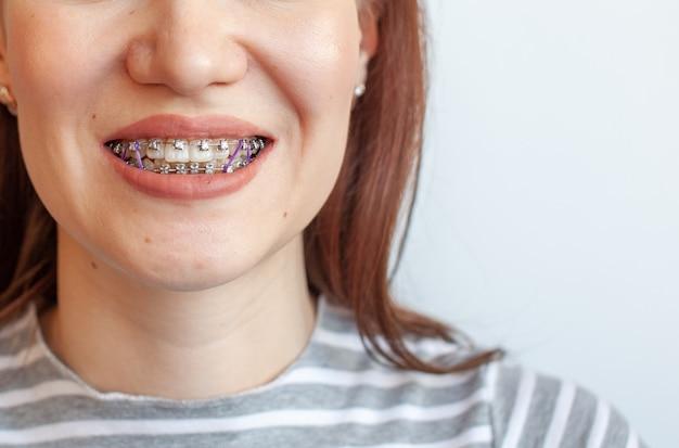 여자의 웃는 입에 교정기. 치아와 입술의 클로즈업. 교정기에서 치아를 매끄럽게합니다. 치아를 조이는 탄성 밴드의 치아.