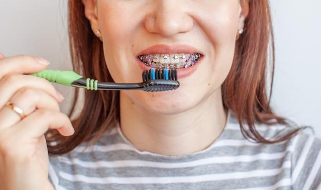 여자의 웃는 입에 교정기. 치아와 입술의 클로즈업 사진. 교정기에서 치아를 매끄럽게합니다. 치아를 조이는 탄성 밴드의 치아. 밝은 단색 배경에 사진.