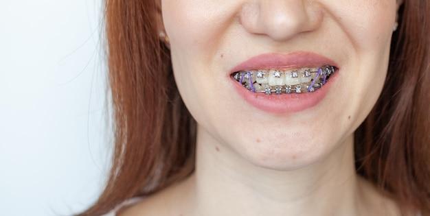 여자의 웃는 입에 교정기. 치아와 입술의 클로즈업 사진