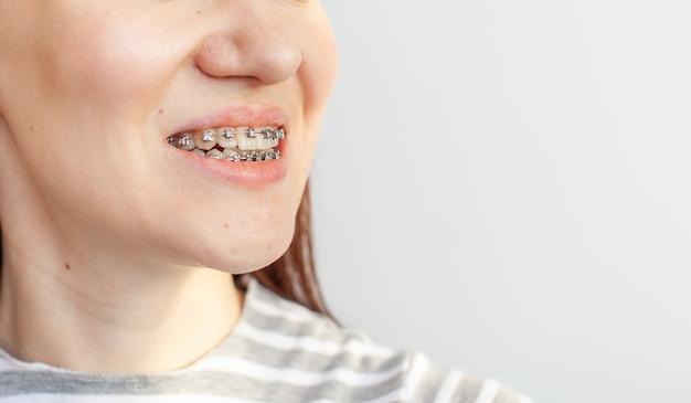 女の子の笑顔の口の中かっこは中かっこから歯を滑らかにします