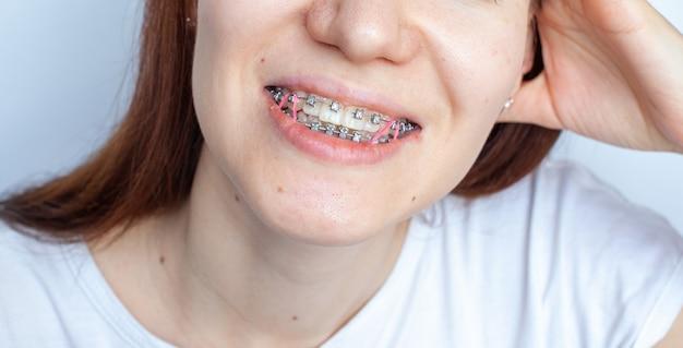 Подтяжки в улыбающемся рту девушки. гладкие зубы от брекетов.