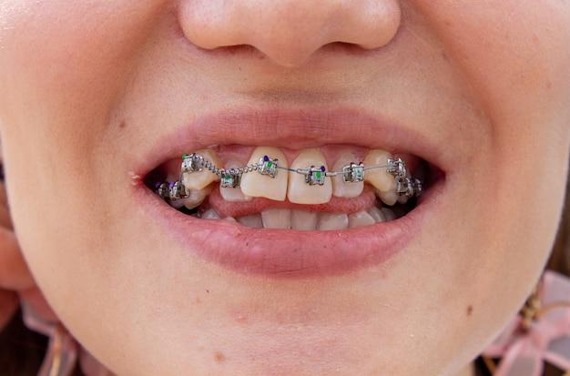 Брекеты на верхней челюсти расположены близко, видно, что зубы кривые и нужны брекеты для выравнивания зубов.