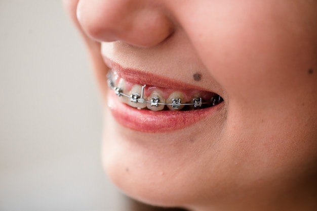 Braces. orthodontic treatment. dental care concept.