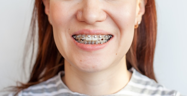 Braces in the smiling mouth of a girl. smooth teeth from braces.
