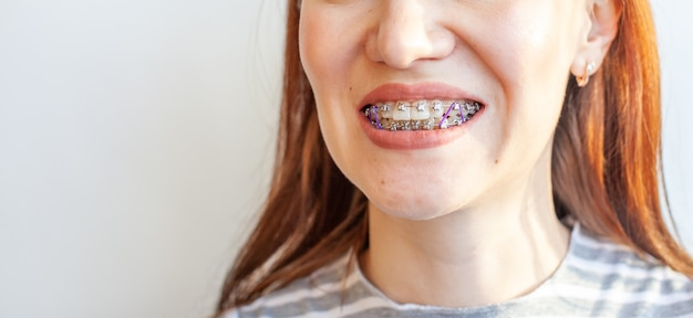 Braces in the smiling mouth of a girl