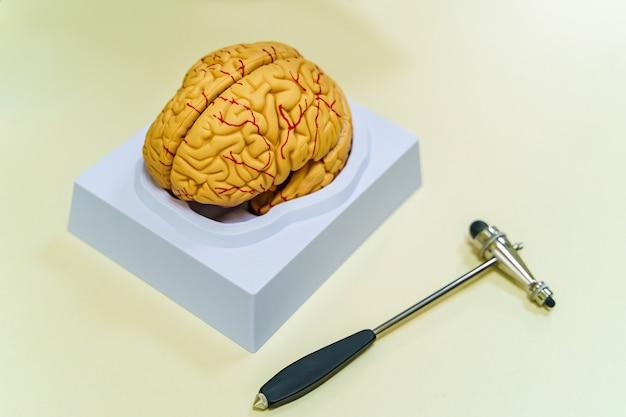 Модель мозга на столе. концепция нейрохирургии. хаммер нейрохирургии.