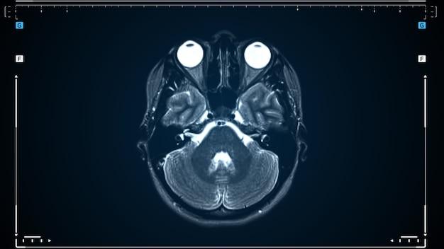 Brain mri scan. scanning of brain's magnetic resonance image. diagnostic medical tool.