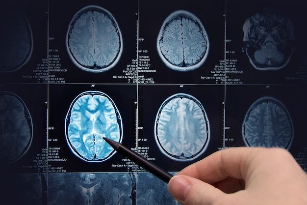 Brain research, magnetic resonance imaging