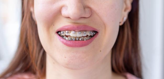 女の子の笑顔の口の中のブラケットシステム、歯のマクロ写真、唇のクローズアップ