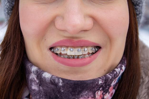 女の子の笑顔の口の中のブラケットシステム、歯のマクロ写真。大きな顔と塗られた唇。女の子の歯の中かっこ