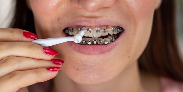 Система браслетов в улыбающемся рту, макро-фото зубов, крупным планом губ, макросъемка. чистка брекет-системы