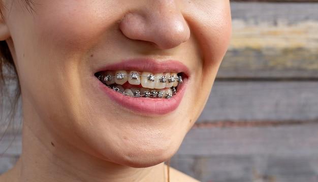 Система браслетов в улыбающемся рту, макро-фото зубов, крупным планом губ, макросъемка.