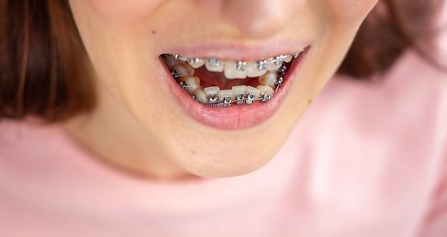 笑顔の口、マクロ写真の歯、クローズアップ唇、マクロショットのブラケットシステム。