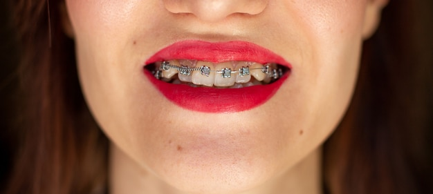 Brasket system in smiling mouth, macro photo teeth, close-up lips, macro shot, dentist. red lips