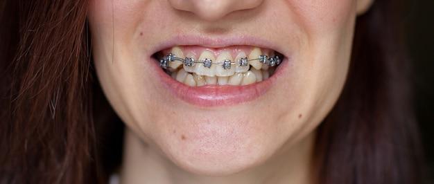 Brasket system in smiling mouth, macro photo teeth, close-up lips, macro shot, dentist.