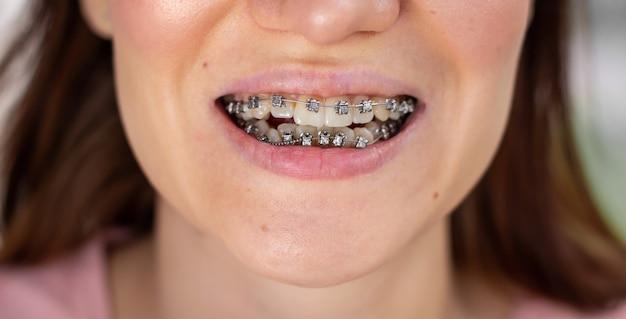 Brasket system in smiling mouth, macro photo teeth, close-up lips, macro shot.
