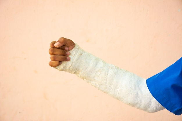 Сломанные руки на розовом фоне.