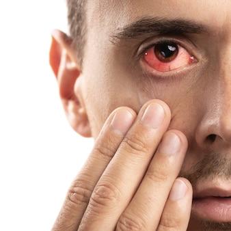 Broken blood vessel in eye.