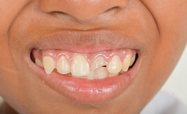 Broken and broken teeth in children.