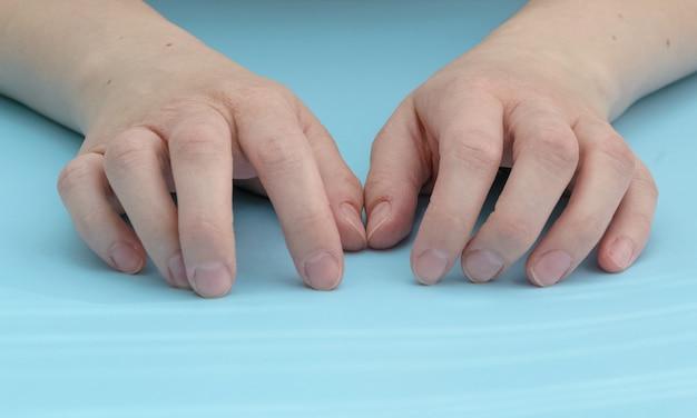 부러진 손가락 넘어진 후 팔 부상 골절 후 왼손 중지 부상